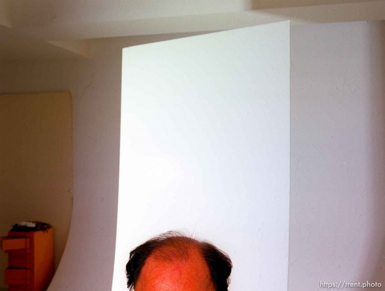 A Photo of Baldness
